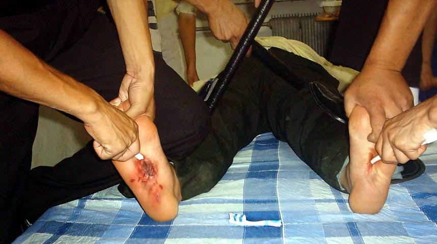 Stabbing the Soles of the Feet