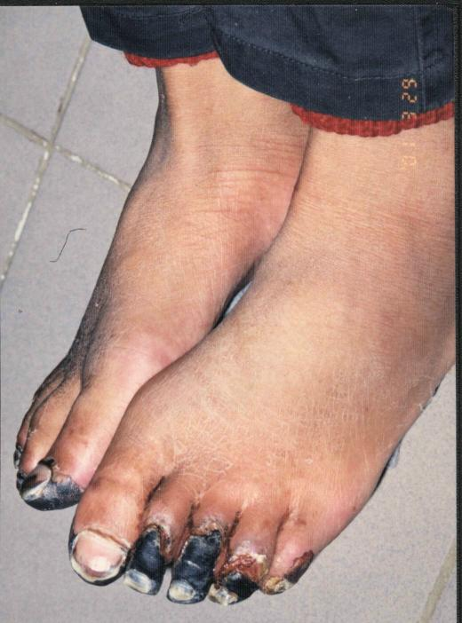 Frostbitten Toes Due to Torture. This Falun Dafa practitioner was arrested